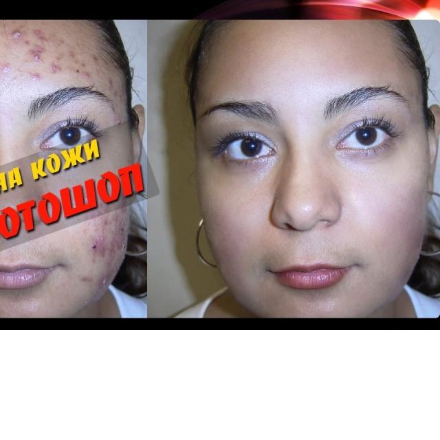 Ретушь лица в Фотошоп. Проблемная кожа. Пересадка кожи с другого лица