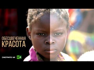 Российский документальный фильм-Обесцвеченная красота